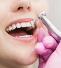 Cliniques dentaires Roumanie